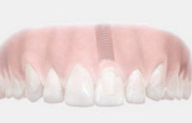 Bien choisir l'expert pour l'implant dentaire montreal
